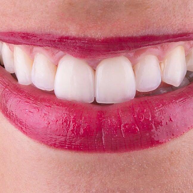 Saiba Como Branquear Os Dentes Sem Sair De Casa Do Mito A
